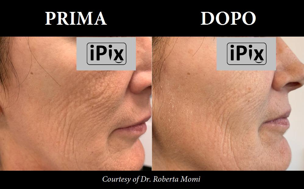 radiofrequenza frazionata viso prima e dopo